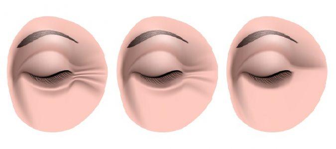 Como es a menudo necesario hacer la máscara para la persona de la arcilla azul